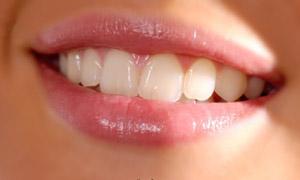 sbiancamento denti con il laser