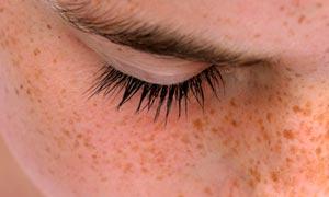 Intervenire sulle macchie della pelle