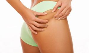 cavitazione cellulite
