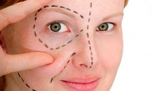 trattamento rughe con il laser